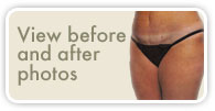 View Before & After Tummy Tuck Photos