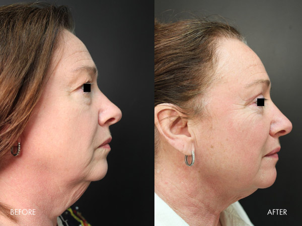 FsceTite advanced non-surgical in office procedure in Louisville, Ky