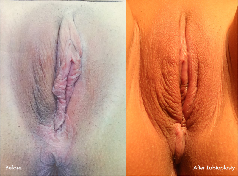 Would love clitoris reduction surgery pictures like air